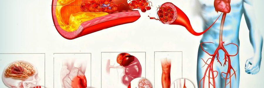 Что нужно знать о кровяном давлении?