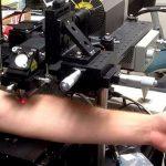 Лазер против рака
